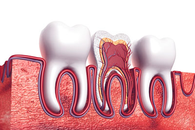 A Root Canal Dentist In Camdenton: Explaining The Basics Of A Root Canal